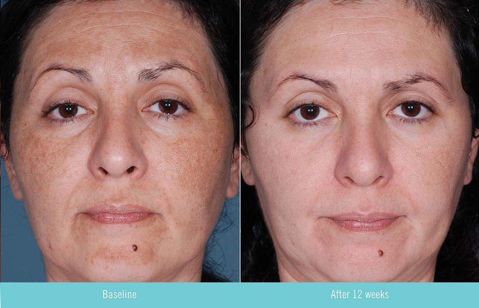 vitamine a zuur creme acne ervaringen